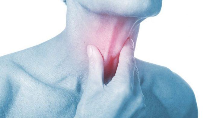 angine herpétique